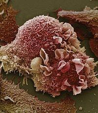 «Умный» браслет обнаружит рак