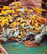 Ученые обнаружили самую маленькую в мире бактерию