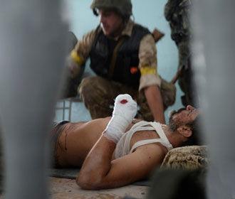 На Донбассе получил ранения военный