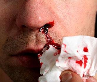 Найден простой способ устранения кровотечения из носа