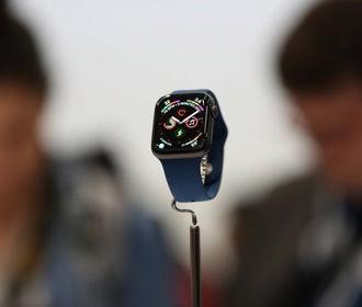 Apple Watch выходят из строя из-за обновления