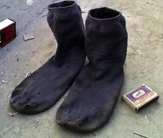 Привычка нюхать грязные носки довела китайца до реанимации