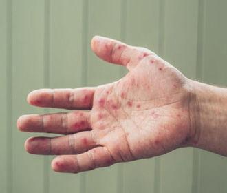 С начала года корью в Украине заболели уже более 57 тыс. человек