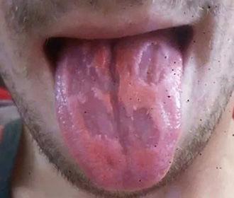 Мужчина сжег язык из-за одержимости энергетиками
