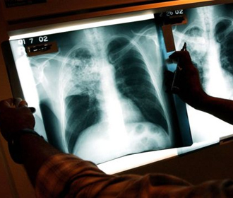 Переболевших коронавирусом предупредили о повышенном риске туберкулеза