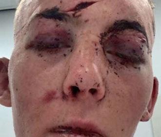 Военнослужащий пошел на свидание с девушкой из Tinder и попал в плен