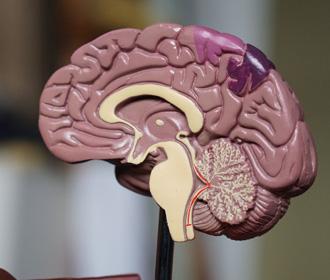 В бытовых вещах обнаружили вред для мозга