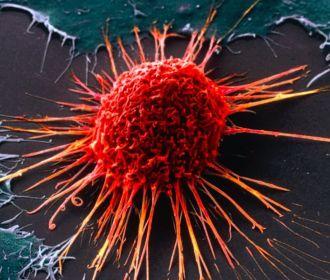 Ожирение печени связали с огромным увеличением риска рака