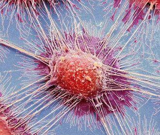 Открыт новый механизм развития рака