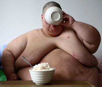 Найден новый метод лечения ожирения