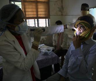 """В Индии выявили первый случай """"зеленого грибка"""" у переболевшего COVID"""