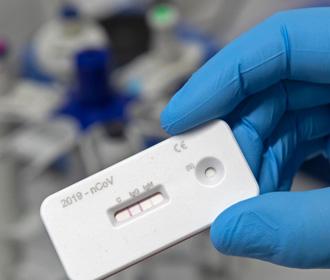 АМКУ проверяет обоснованность цен экспресс-тестов на границе