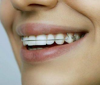 Пластины для выравнивания зубов: особенности использования ортодонтических пластинок